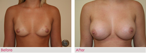 Breast Augmentation - patient1