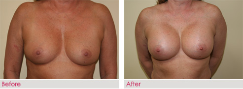 Breast Augmentation - patient2