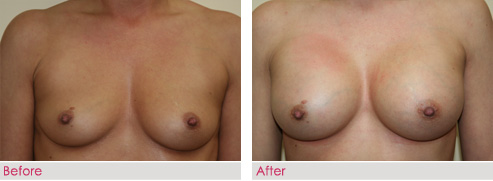 Breast Augmentation - patient3