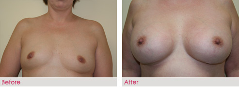 Breast Augmentation - patient4