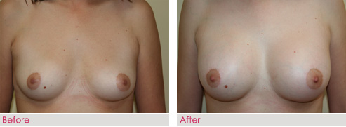 Breast Augmentation - patient5