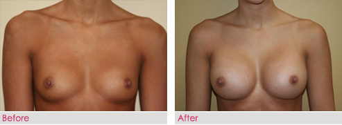 Breast Augmentation - patient8