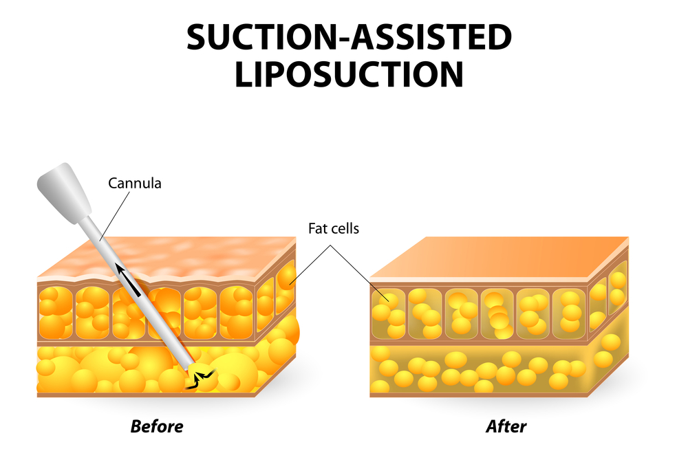 Suction Assisted Liposuction