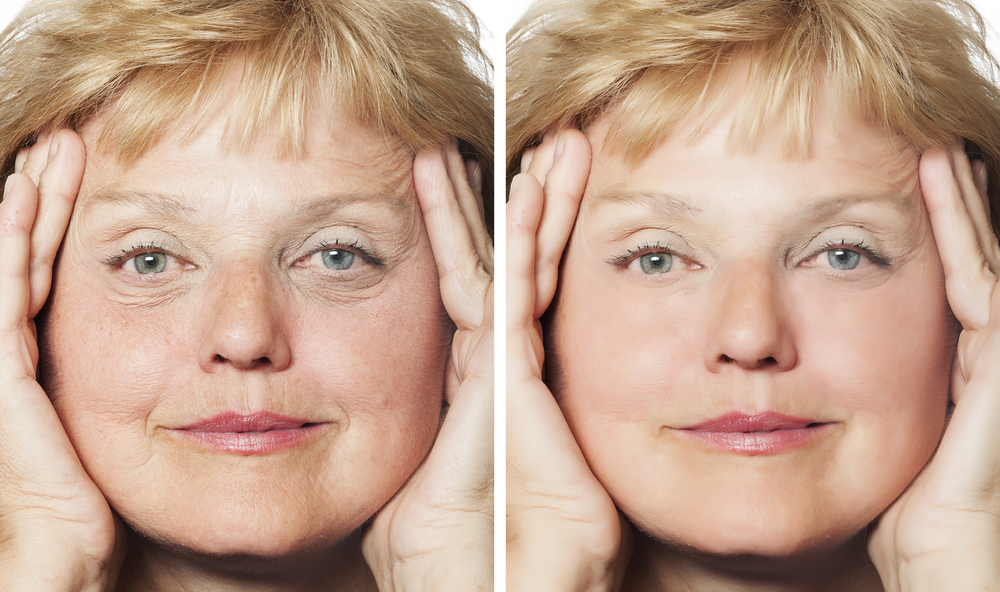 Before and After photos of female facelift patient