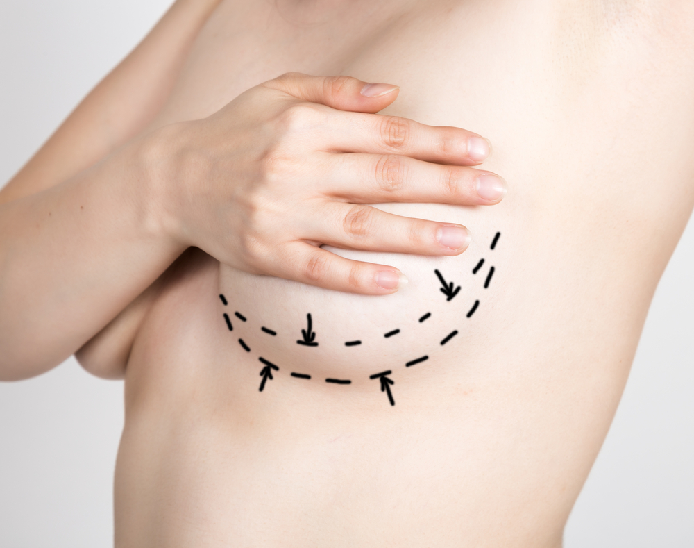 Woman preparing for breast augmentation procedure