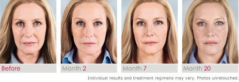 Sculptra Aesthetic effect before and after